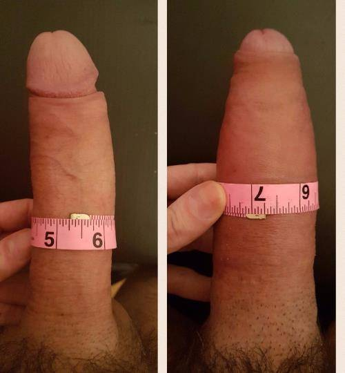 Androfill patient after penis enlargement injection.