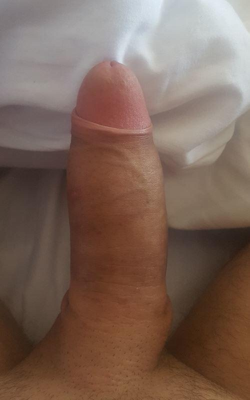 Penis Enlargement Before and After