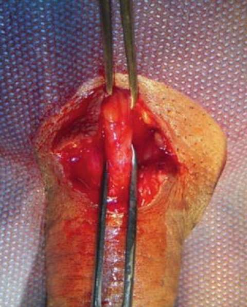 Severing of the Penile Suspensory Ligament